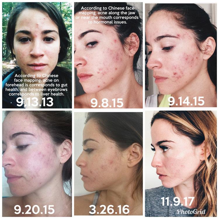 How I Got Hormonal Acne Under Control — YOGABYCANDACE