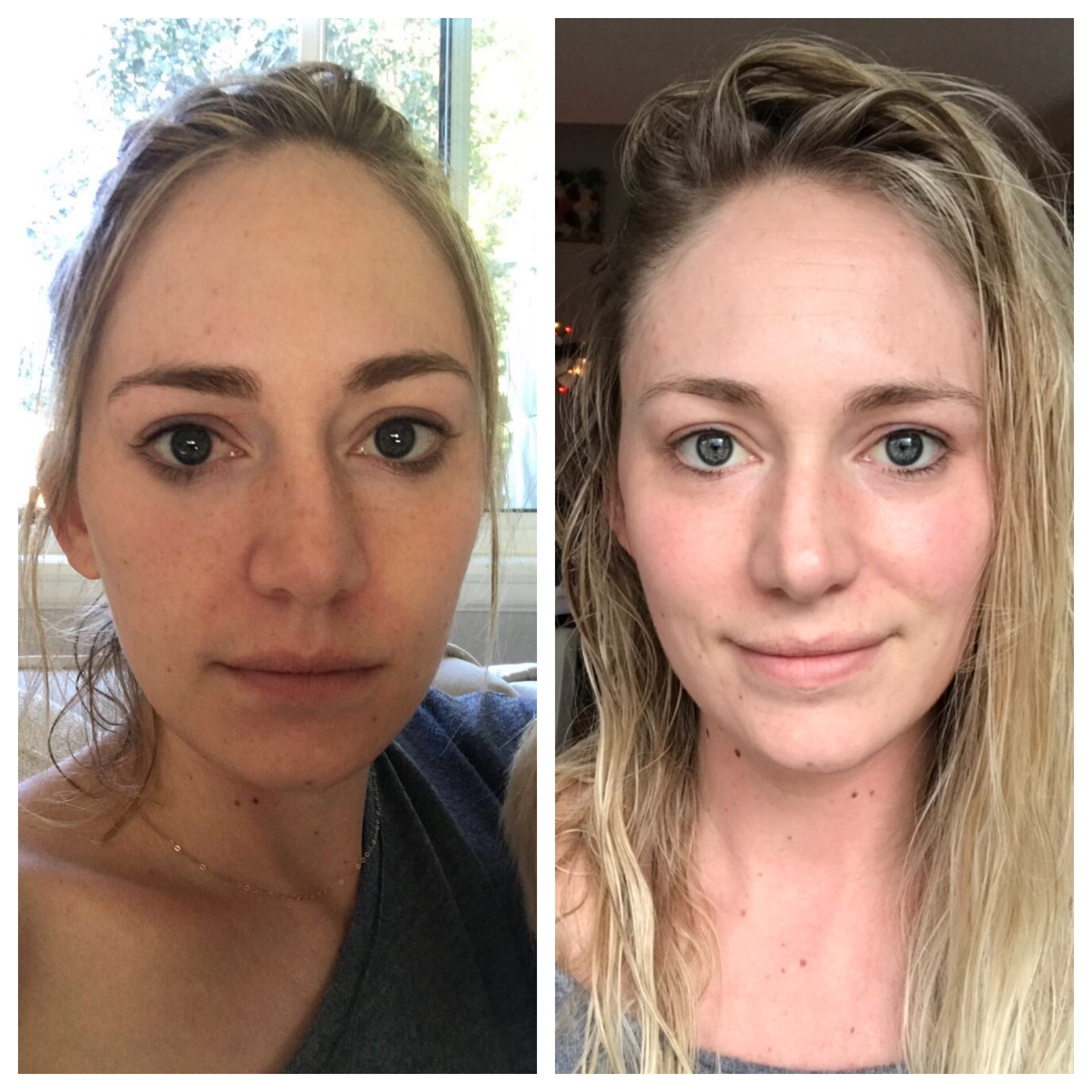 before-after-skincare-routine-yogabycandace