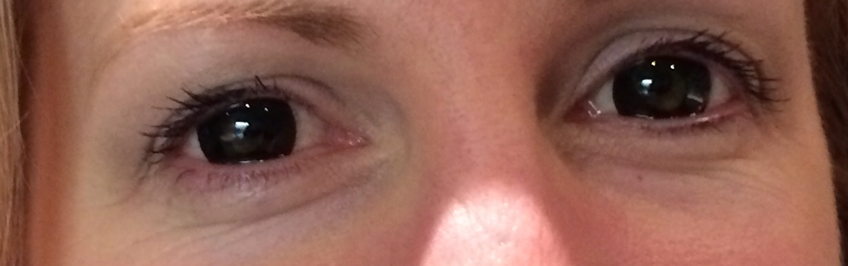 Woops, Vicky Pradhan got a little too dilated today (wearing Blackout contacts)