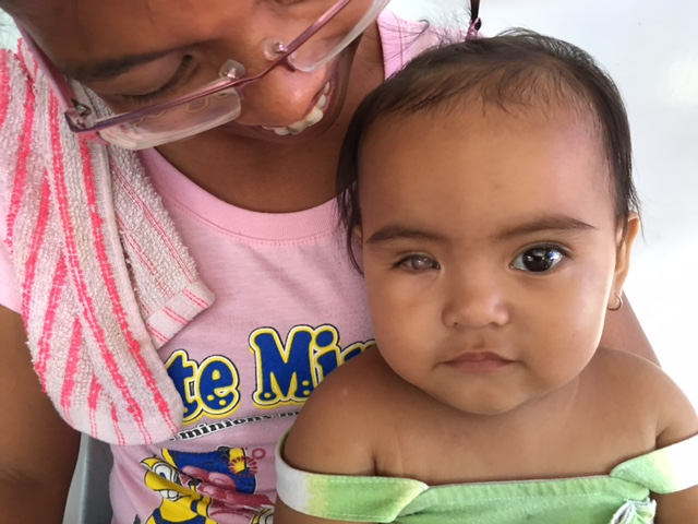 "This 10-month-old baby girl has congenital glaucoma in her right eye.  Her mother noticed that her eye started to look like ""mata ng pusa"" soon after birth, which means ""cat's eye.""  She was referring the baby's iris not developing properly, a condition common in congenital glaucoma."