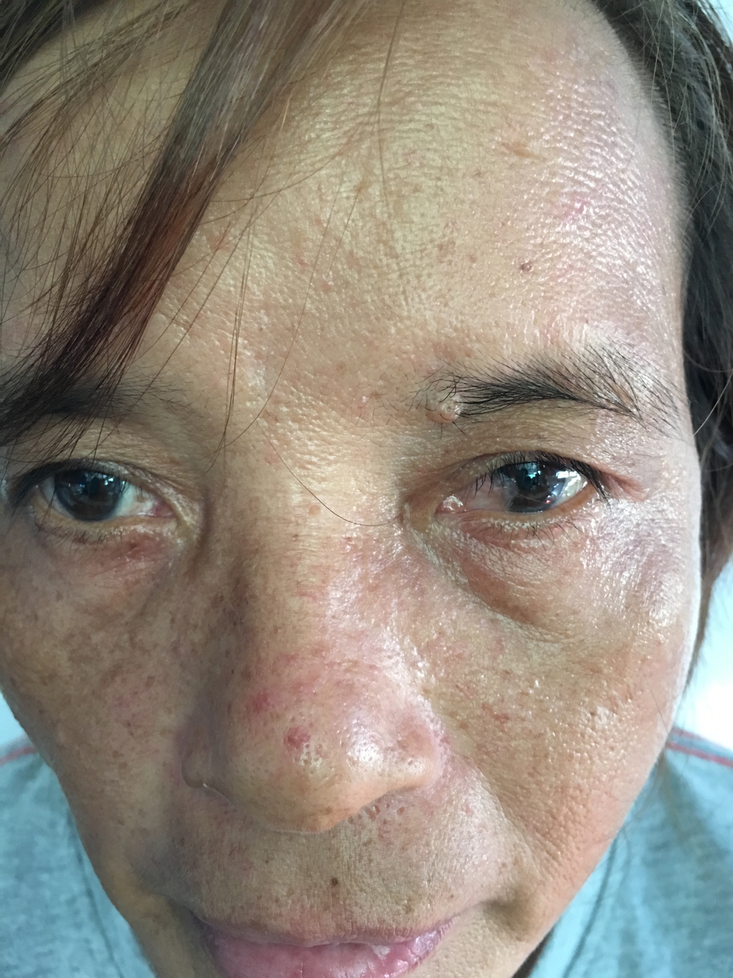 This woman was losing her vision due to pterygium growth over her left eye due to exposure to wind, sun and dust.  She was scheduled to have it removed.  Once removed, she will regain normal vision.