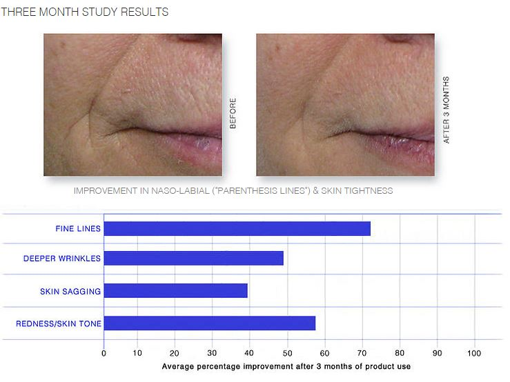ULTRA SERUM  REVERSES VISIBLE WRINKLE DEVELOPMENT, TIGHTENS SAGGING SKIN, POTENT ANTIOXIDANT THERAPY