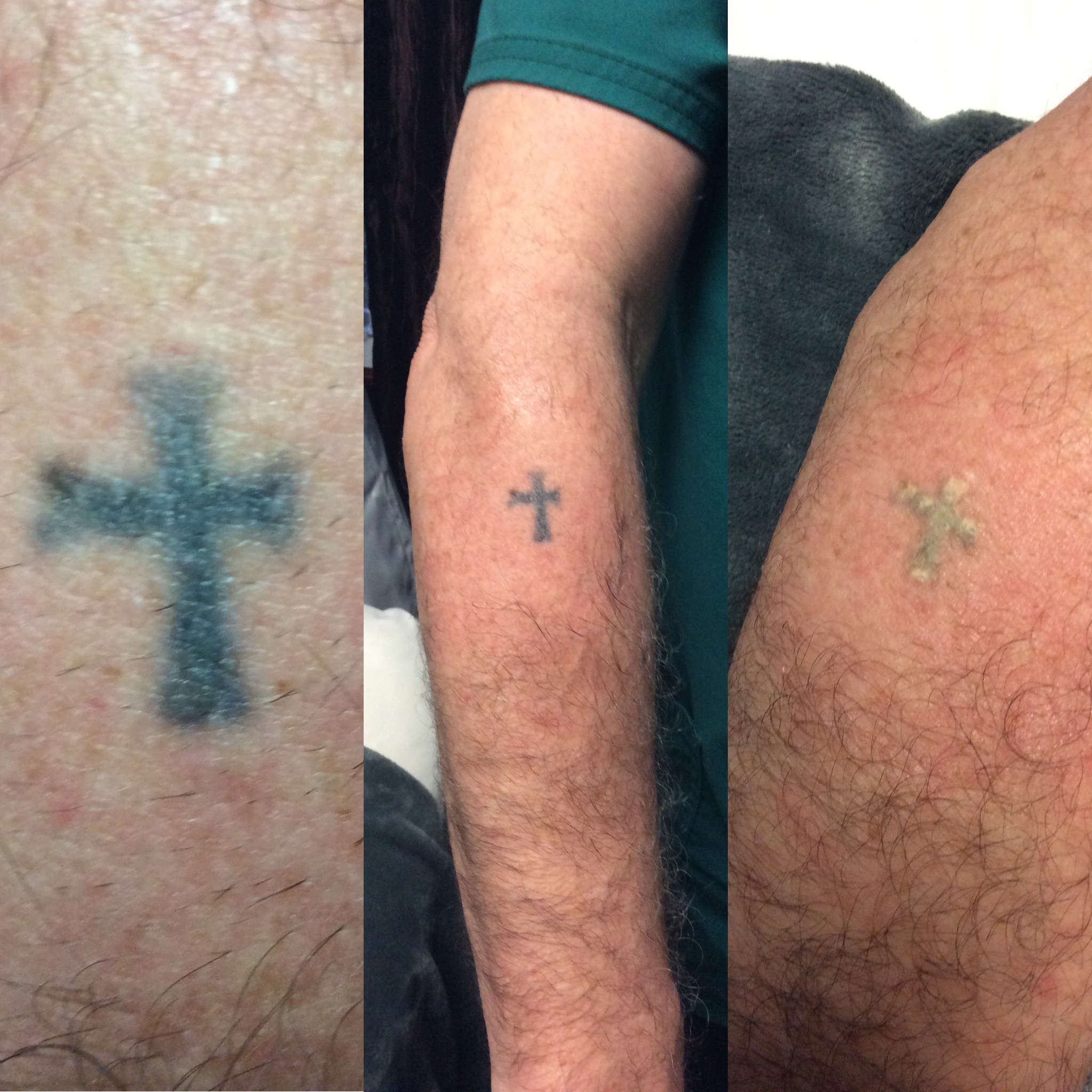 Videos available on our Facebook and Instagram Tattoo Removal Session 1