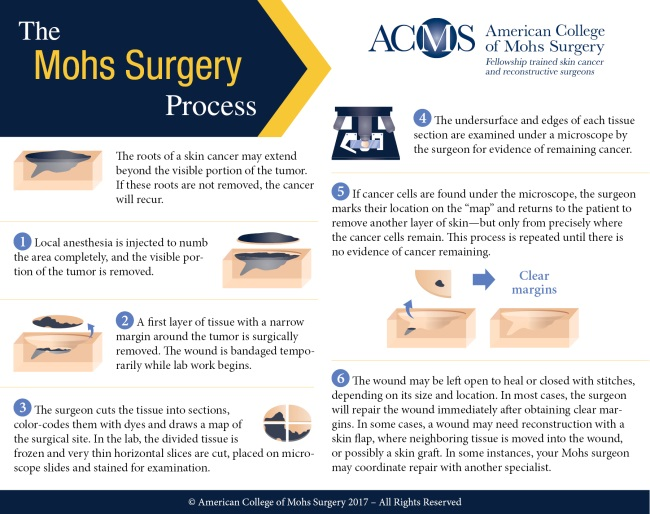 ACMS-Mohs-Surgery-Process-Infographic-Square-650px.jpg