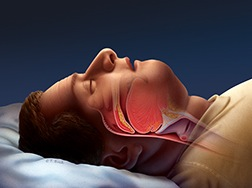 Obstructive Sleep Apnoea