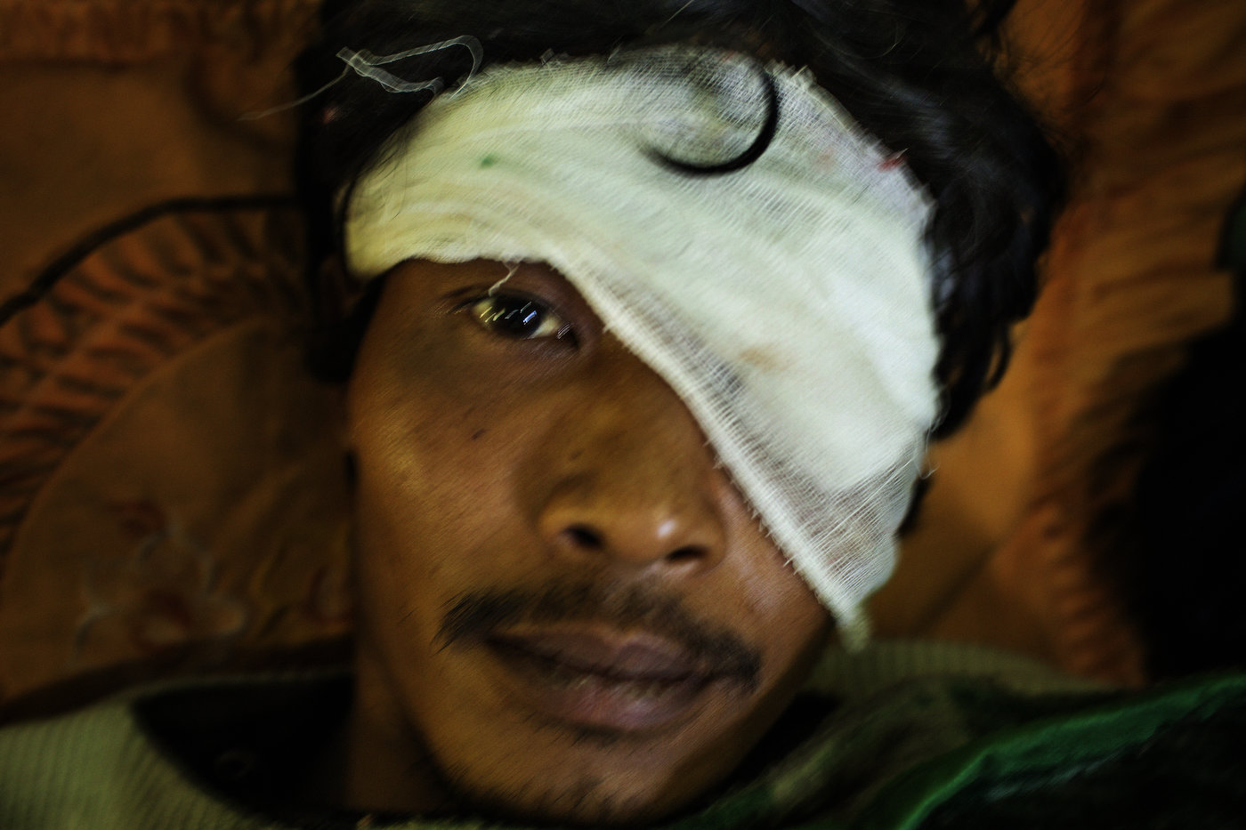 A battle-wounded Burmese Army prisoner held captive by the Kachin Independence Army (KIA) ally of the All Burma Student Democratic Front (ABSDF) lies in a small house at an outpost in Kachin State in northern Myanmar.