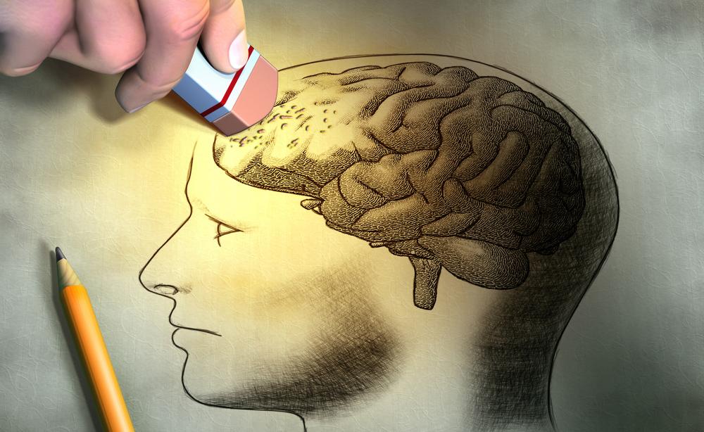 Morbo-di-Alzheimer.jpg