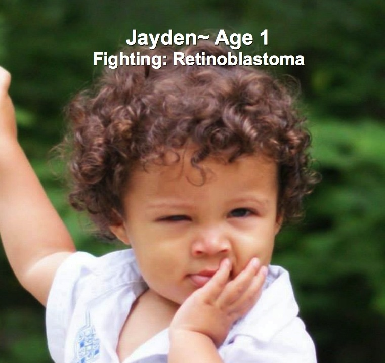 33-Jayden-1.Retinoblastoma,jpg.jpg
