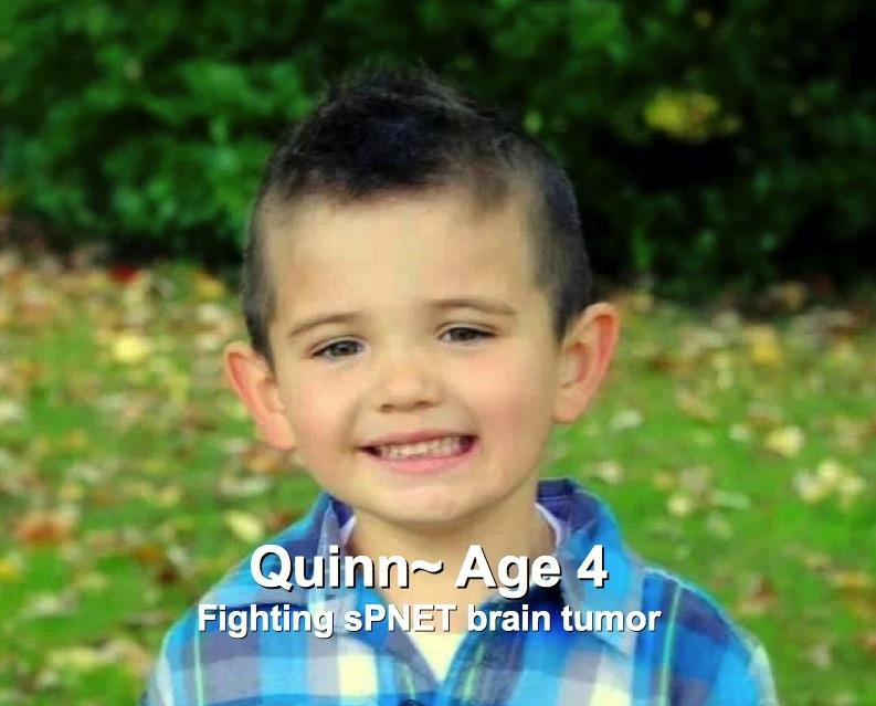 62-Quinn-4-sPNET brain tumor.jpg