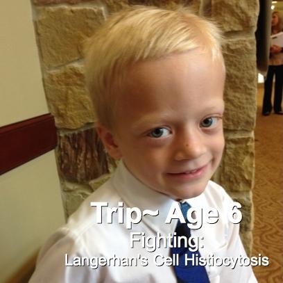 69-Trip-6-Langerhan's Cell Histiocytosis.jpg