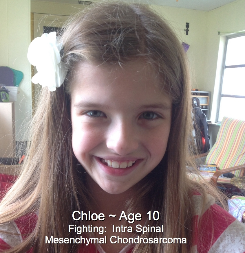 74-Chloe-10-Intra Spinal Mesenchymal Chondrosarcoma.jpg