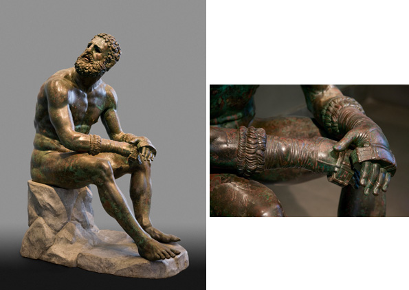 [ Boxer at Rest  (left) and Fig. 5. detail (right), Greek, Hellenistic period, late 4th–2nd century B.C., bronze with copper inlays. Museo Nazionale Romano - Palazzo Massimo alle Terme, inv. 1055. Lent by the Republic of Italy, 2013. Image courtsey Vanni/Art Resource, NY] - Caption,  ibid . Click image to go to the article at  thecultureconcept.com .