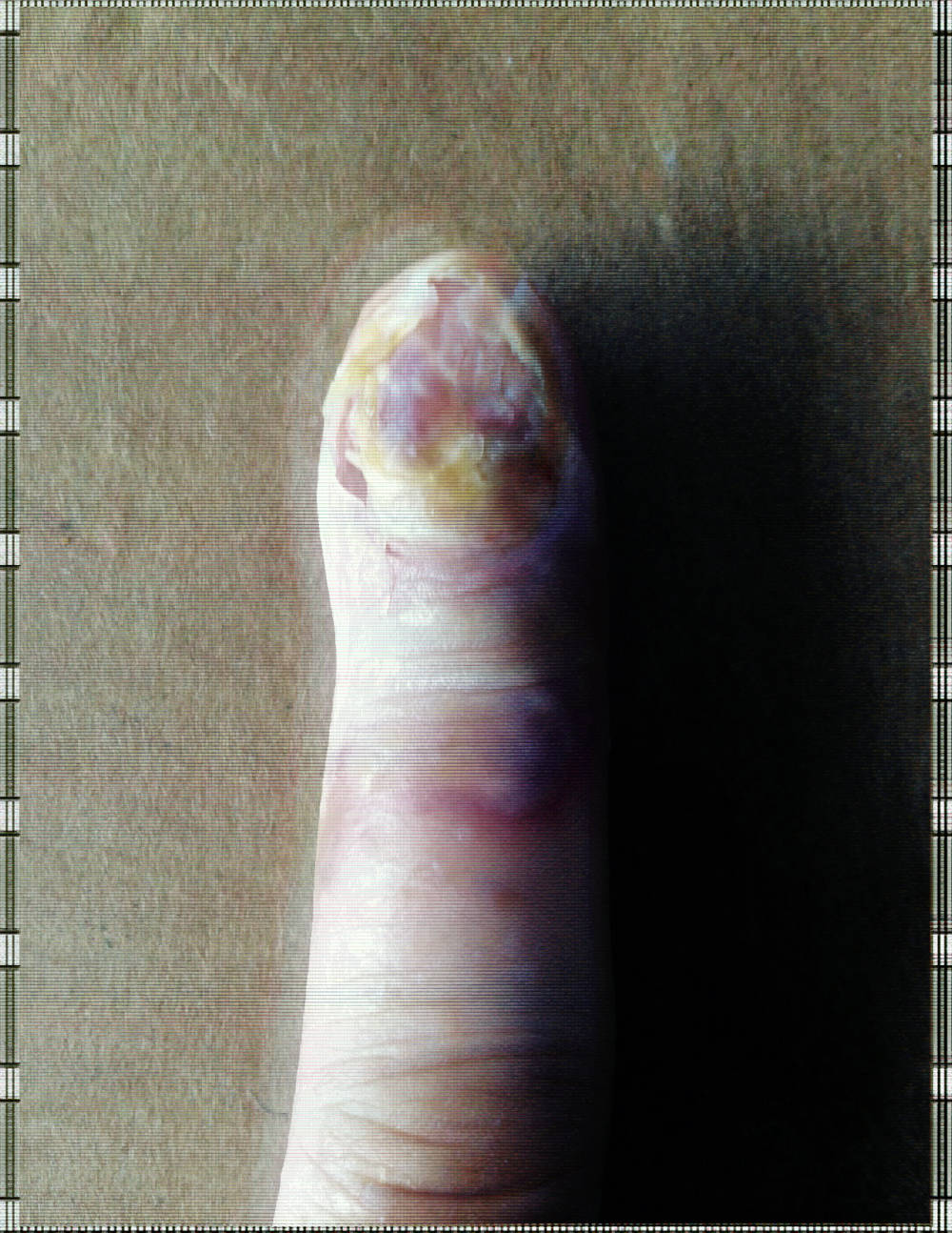 finger3.jpg