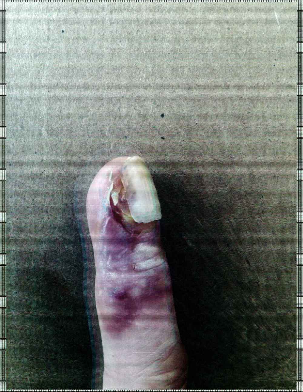 finger6.jpg