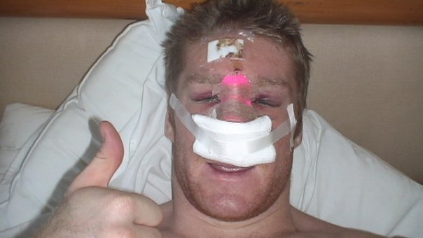 Author after facial reconstructive surgery in Mexico from attempting a backflip on the beach.