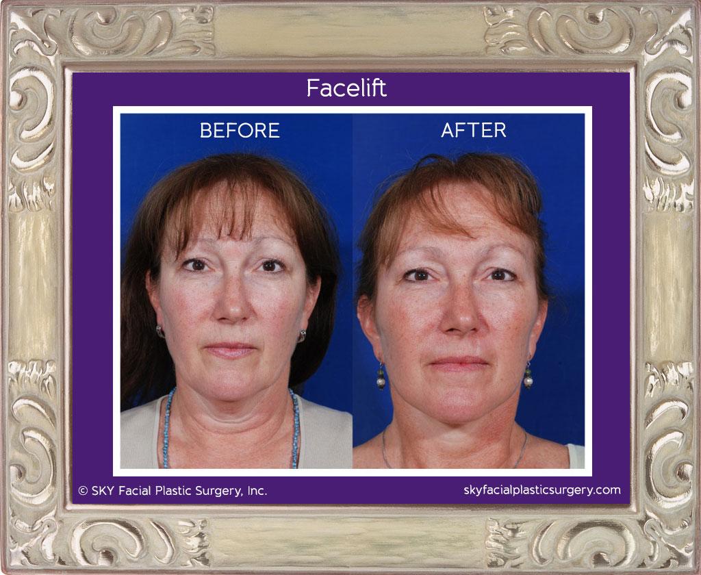 SKY-Facial-Plastic-Surgery-Facelift-1A.jpg