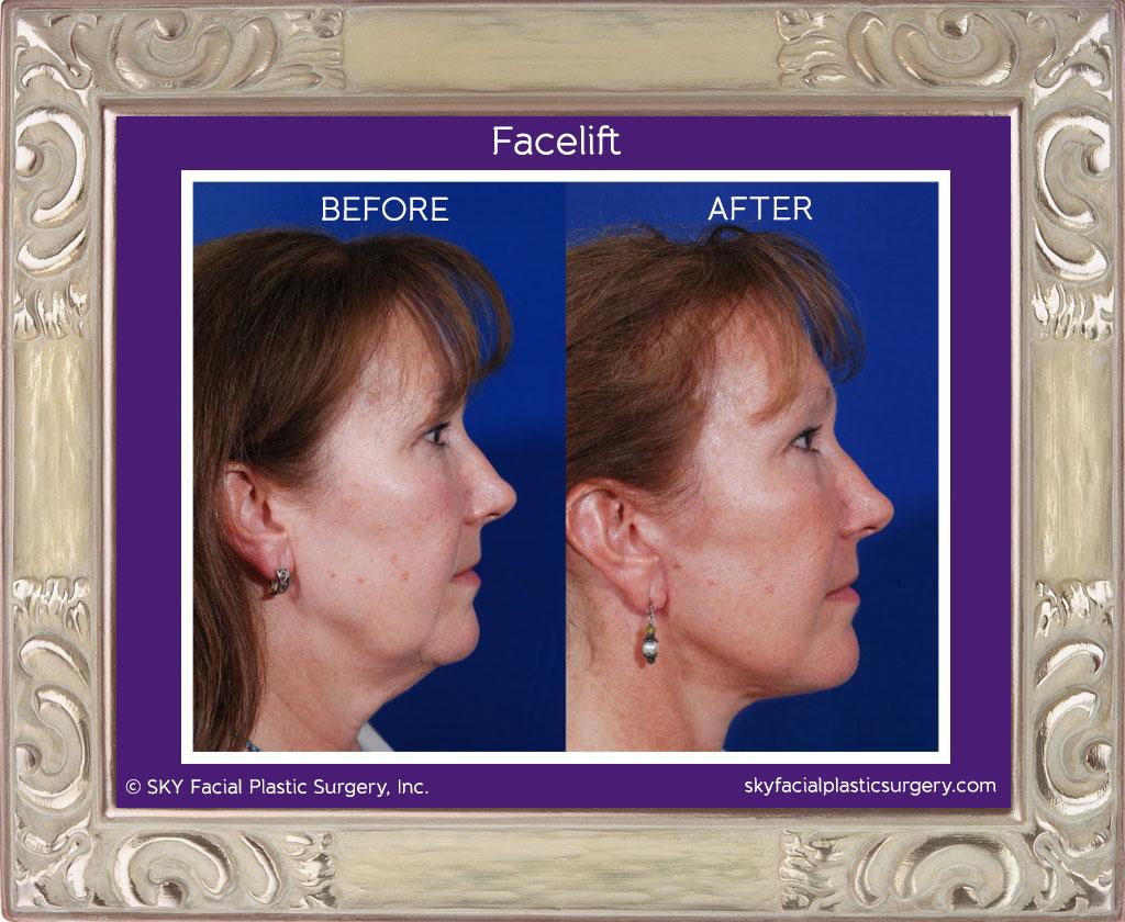 SKY-Facial-Plastic-Surgery-Facelift-1E.jpg
