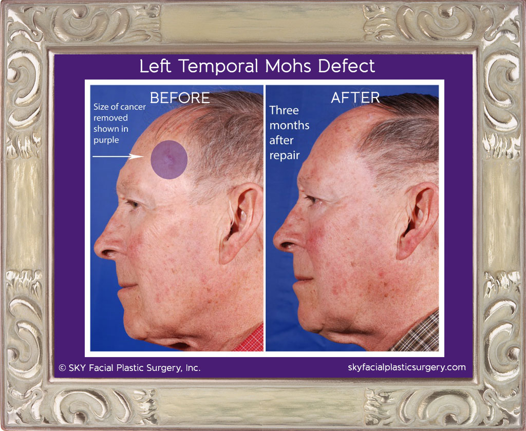 Left temple squamous cell carcinoma.  This cancer was removed by a Mohs surgeon.  The size of the defect is shown with the purple circle.  The photo on the right shows what he looks like 3 months after reconstruction by Dr. Yoo.
