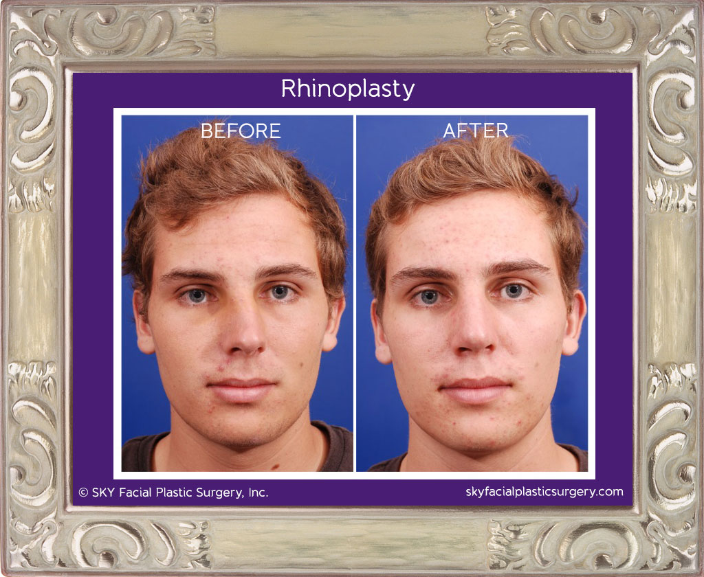Copy of Rhinoplasty - San Diego