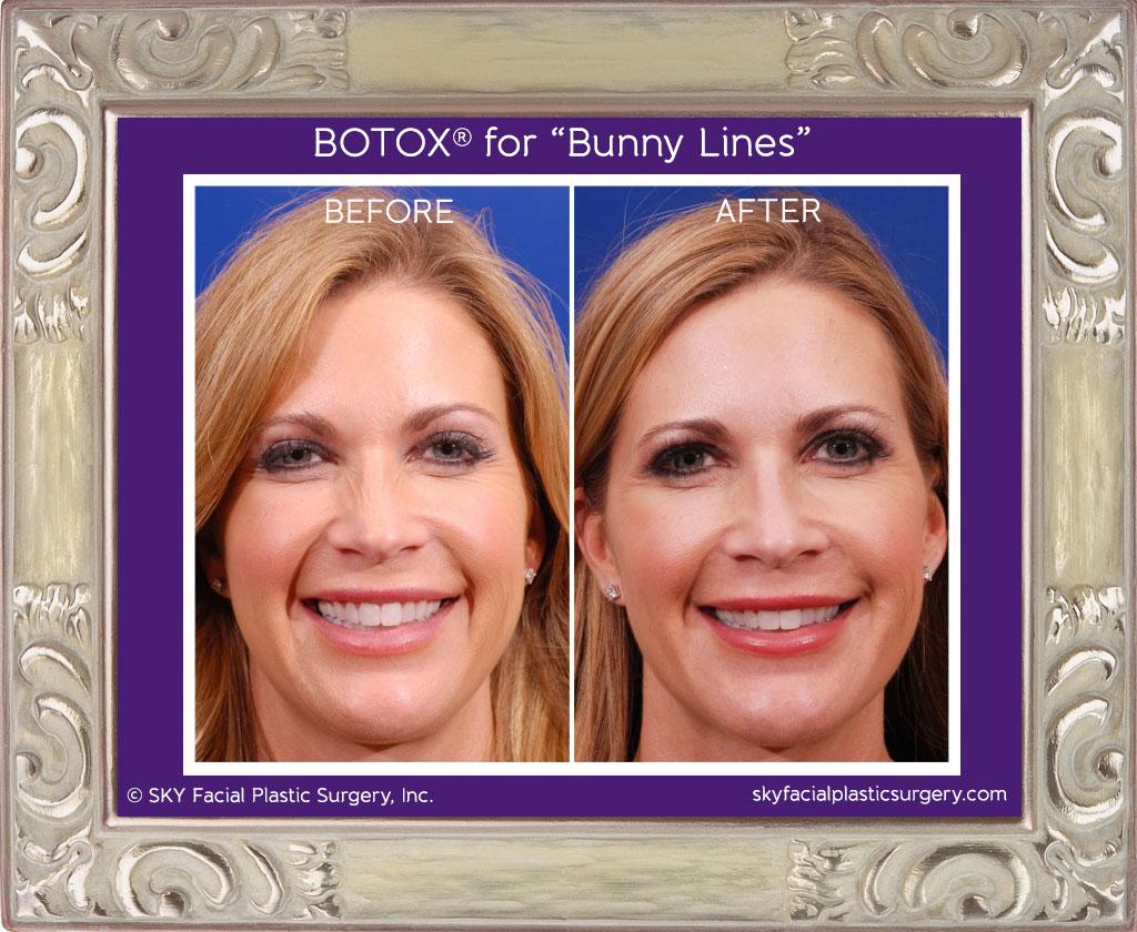 "Botox to treat ""Bunny Lines"""