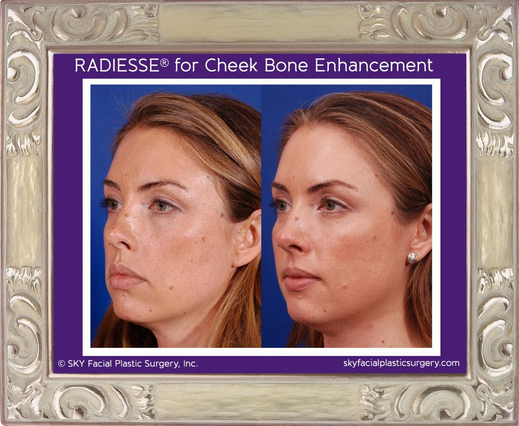 Radiesse for cheek bone enhancement