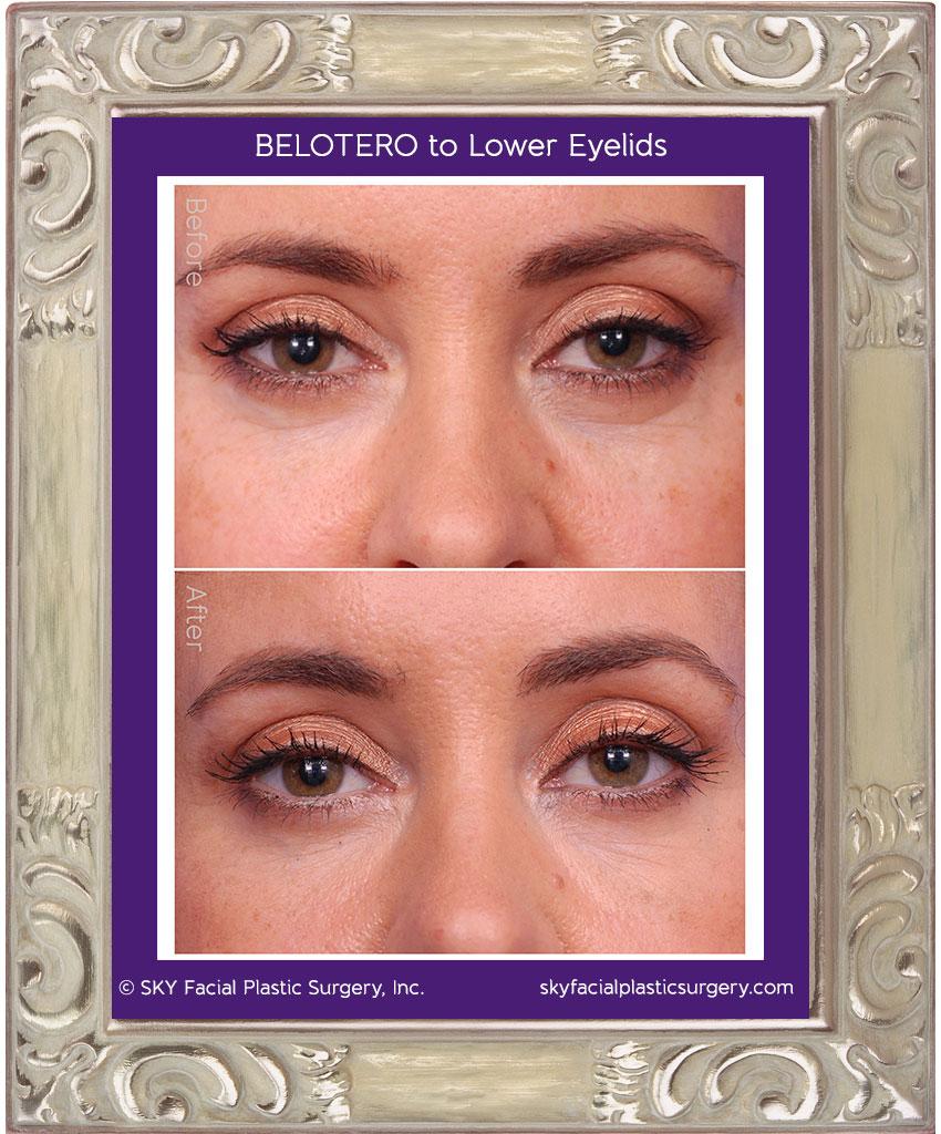 Belotera for rejuvenation of the lower eyelid