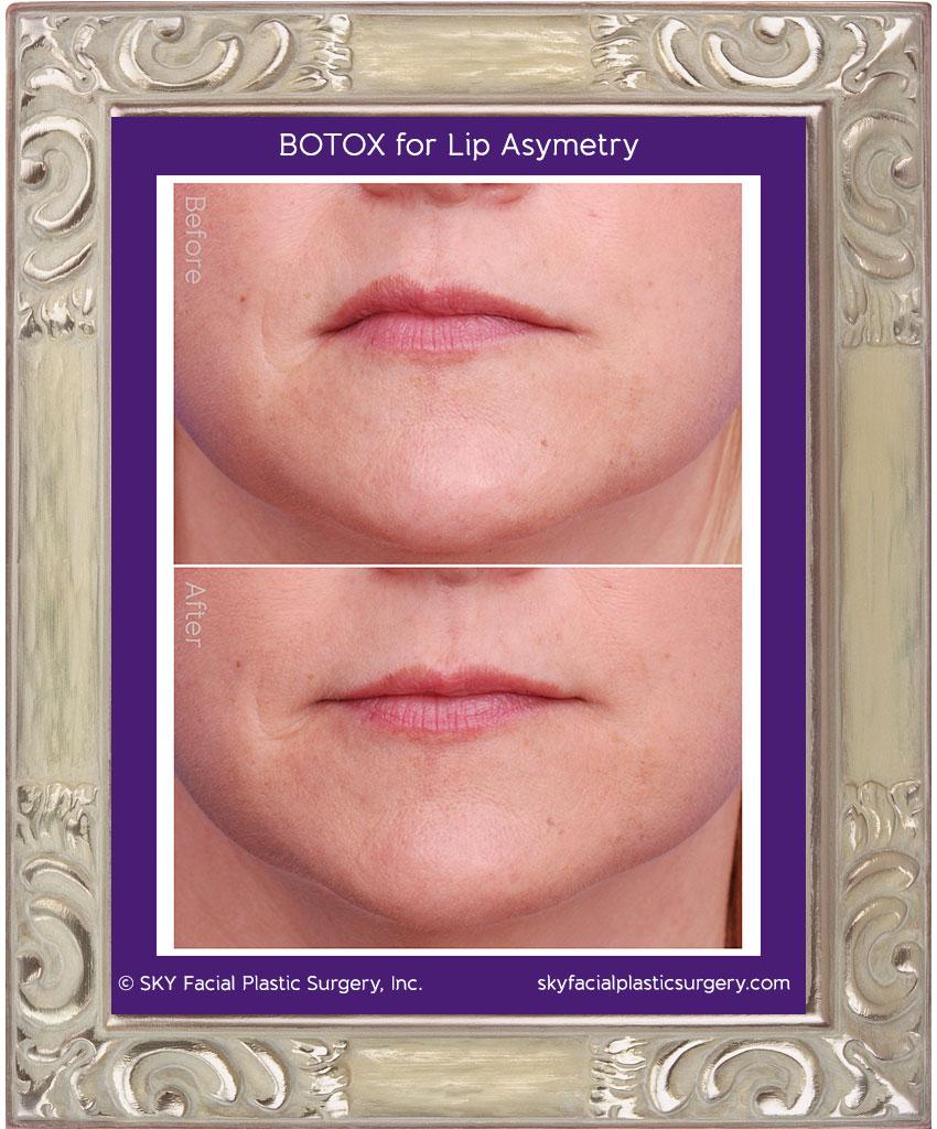 Botox for lip asymmetry