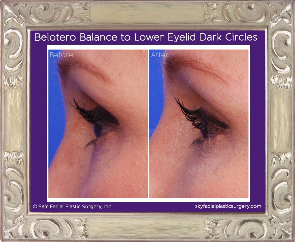 Belotera for lower lid dark circles