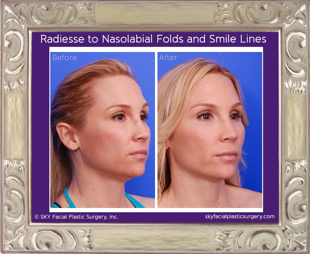 Juvederm for nasolabial fold wrinkles