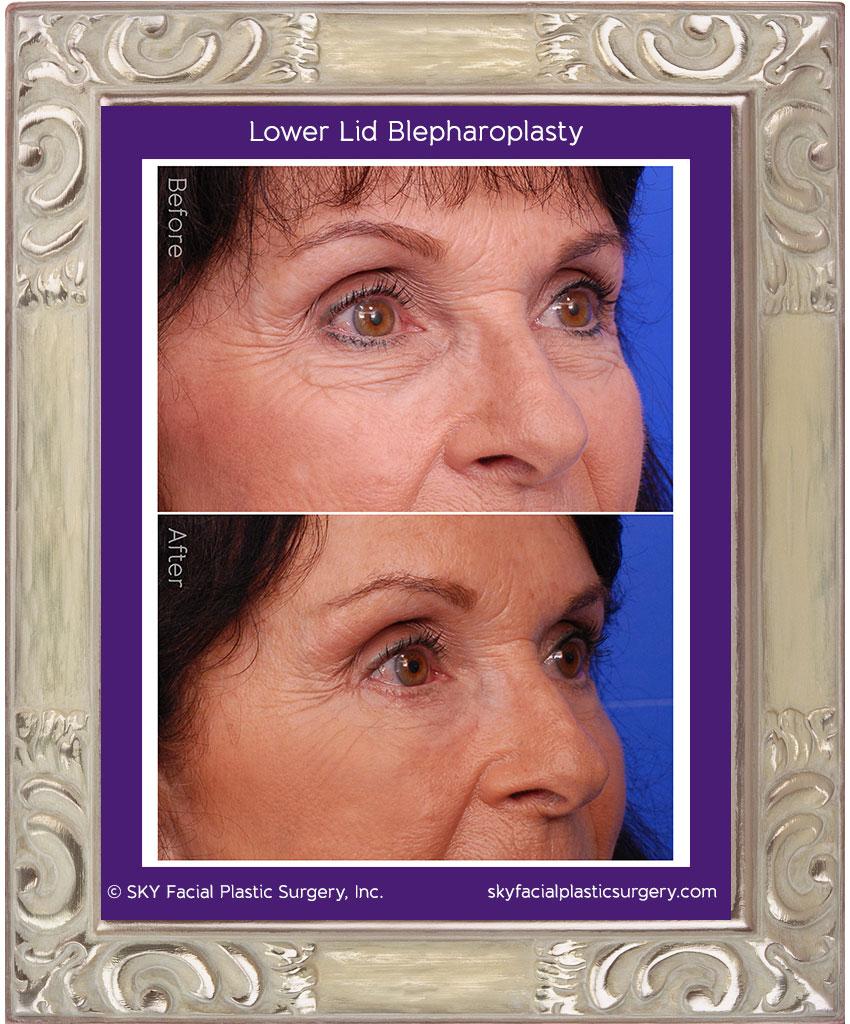 Lower lid blepharopasty