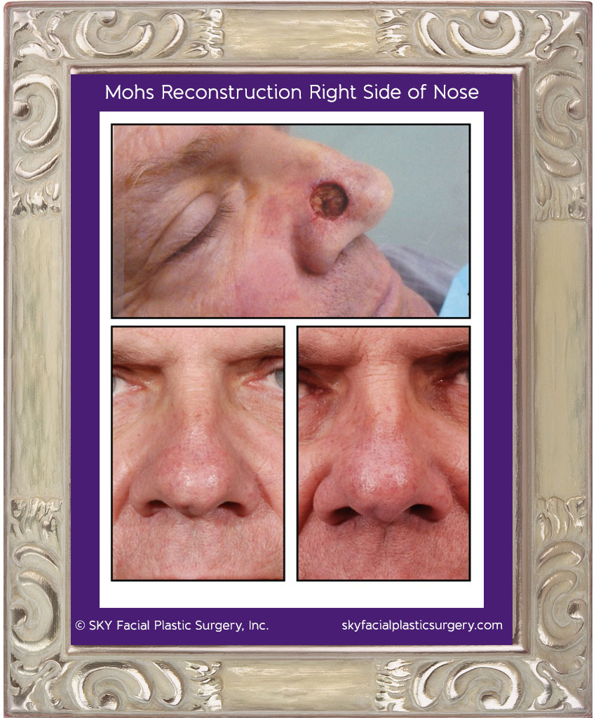 This gentleman had a basal cell carcinoma removed from the right side of his nose.  The photo on top shows the defect after cancer removal.  The reconstruction was performed with a bilobed flap.