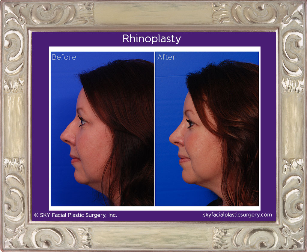 Copy of cosmetic rhinoplasty - Left Lateral Comparison - San Diego