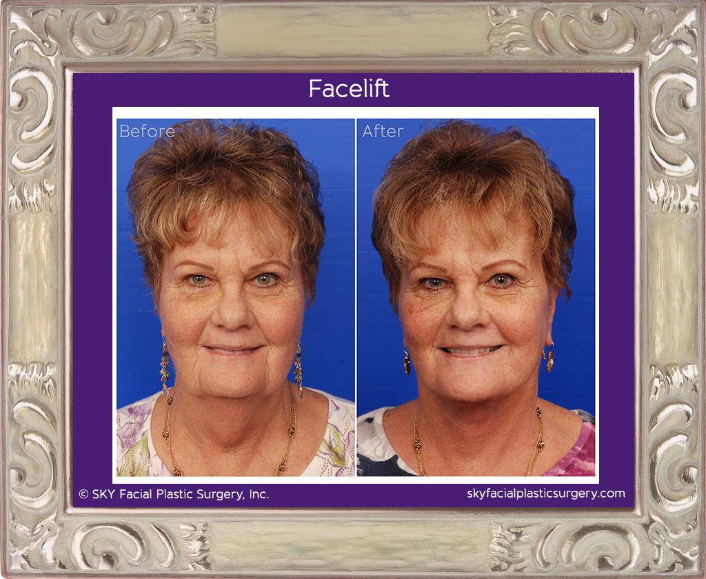 SKY-Facial-Plastic-Surgery-Facelift-5A.jpg