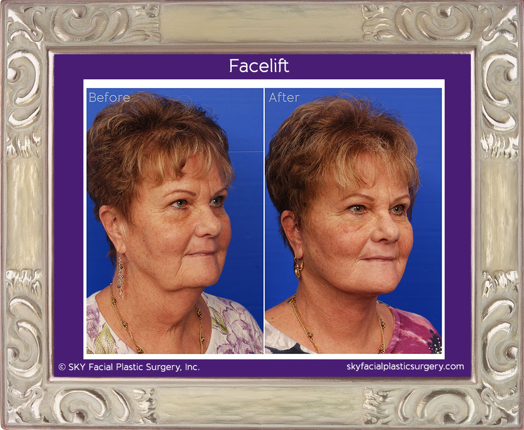SKY-Facial-Plastic-Surgery-Facelift-5E.jpg