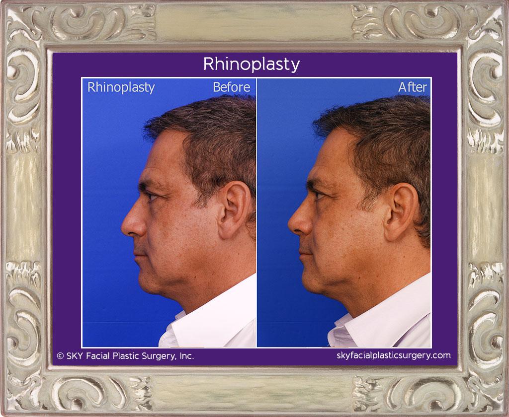 Copy of Male Rhinoplasty - San Diego