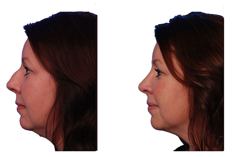 """PHOTO: Before and after photo of real rhinoplasty patient showing removal of dorsal hump (""""nose bump"""")"""