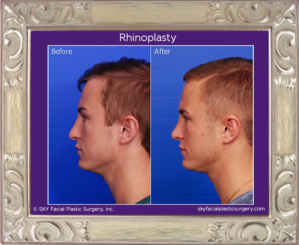 Copy of Male rib rhinoplasty - Left Lateral View