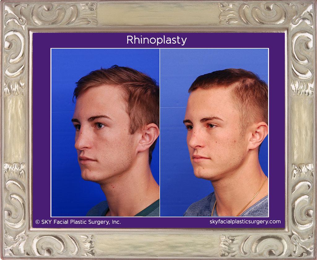 Copy of Male Rib Rhinoplasty - Left Oblique View