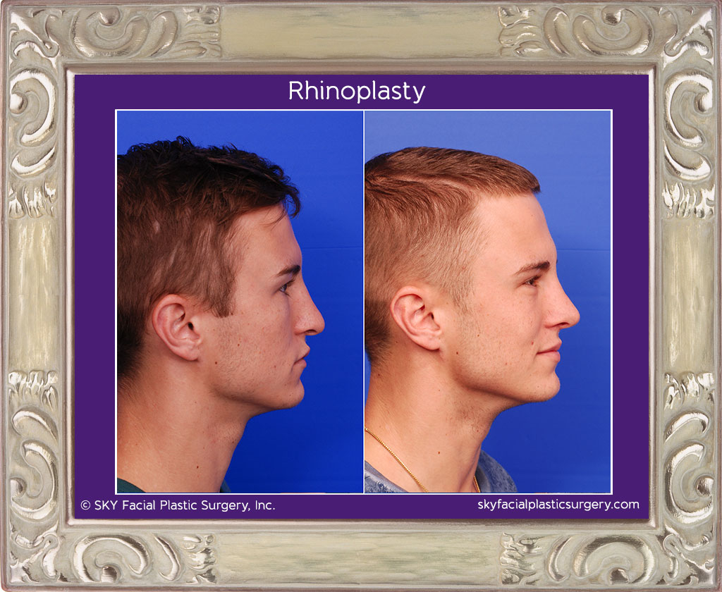 Male Rib Rhinoplasty - Right Lateral View