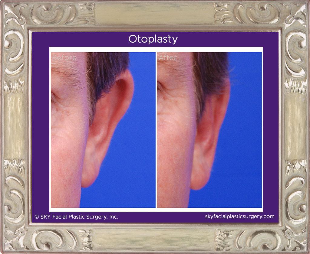 Otoplasty in San Diego- Ear Reshaping 1