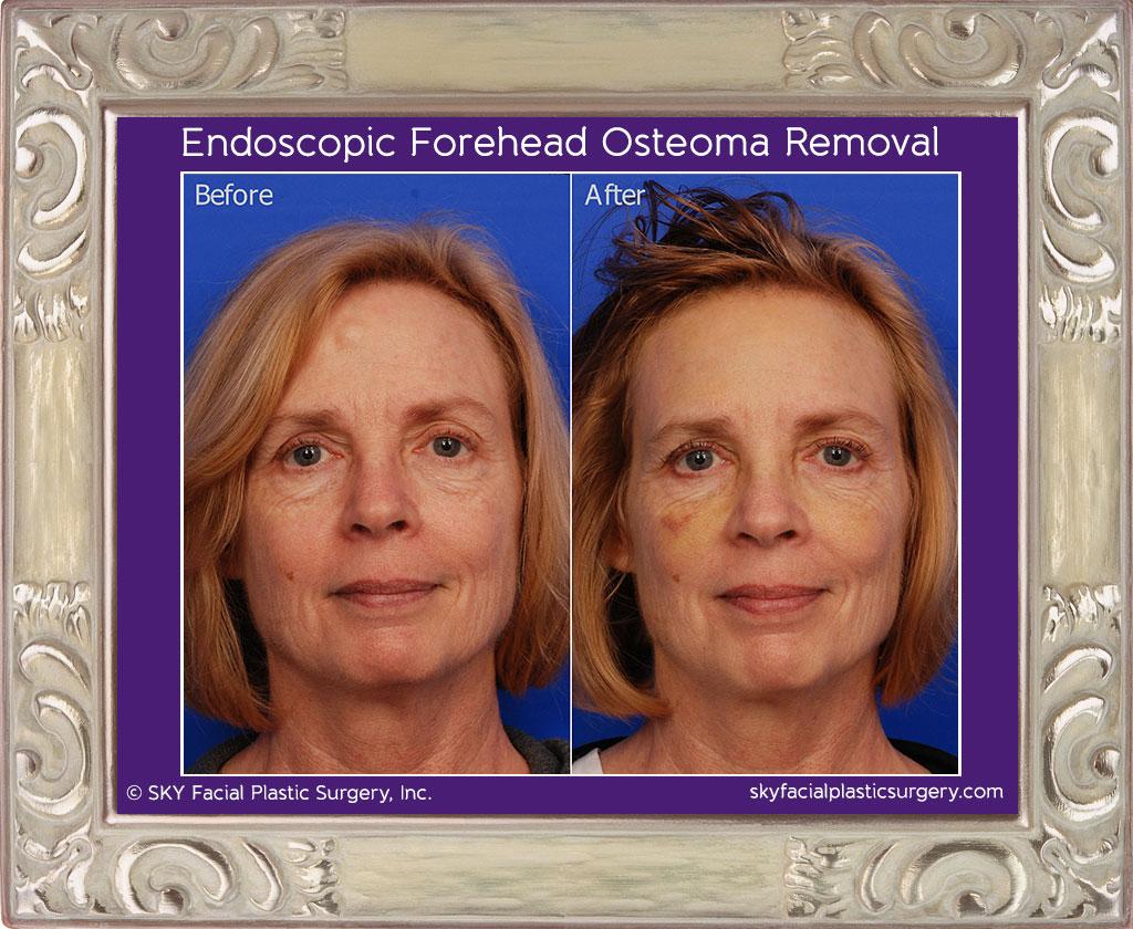 Endoscopic Forehead Osteoma Removal 2