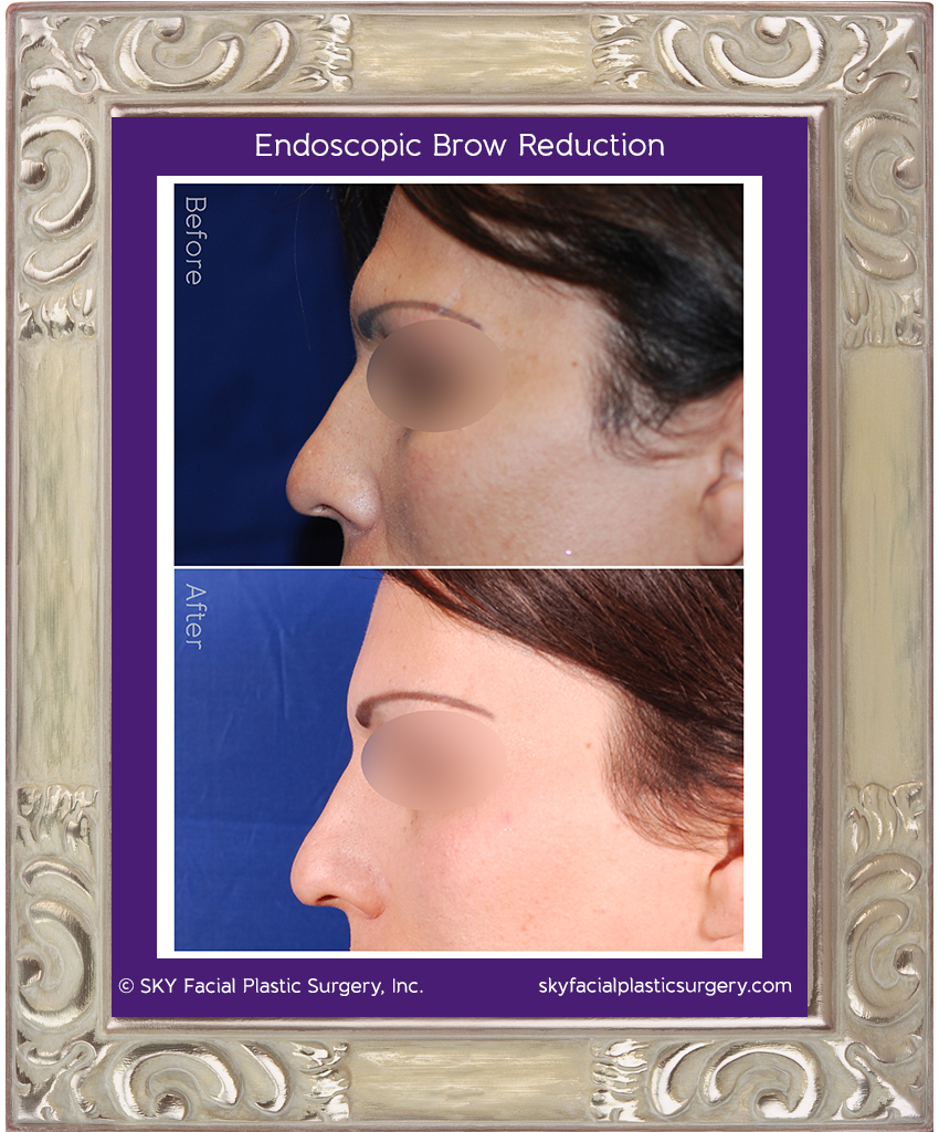 Small endoscopic incisions were hidden behind the hair line to provide access for endoscopic instruments to shave down and contour the brow ridge.
