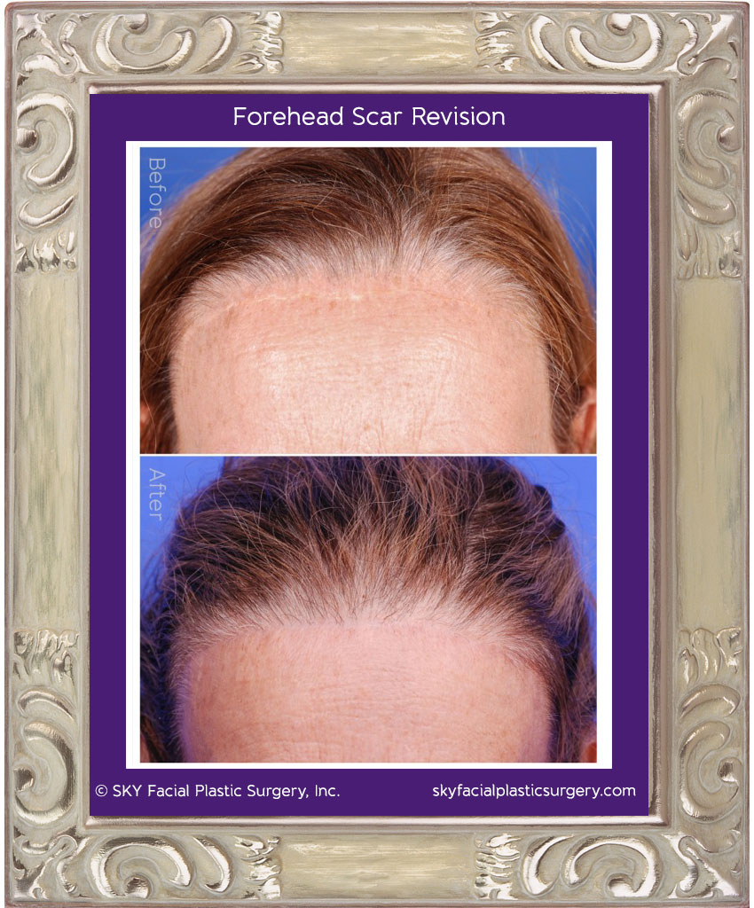 PHOTO: Scar revision before and after.