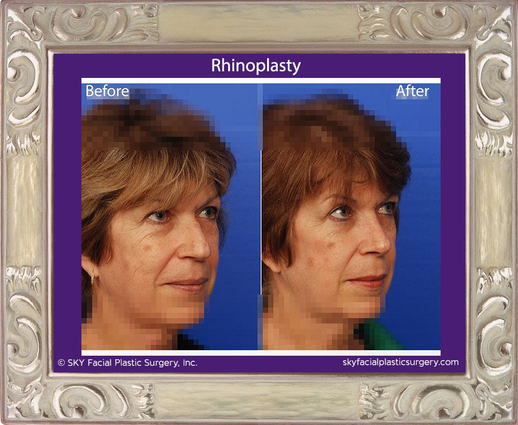 Copy of Rhinoplasty 21D