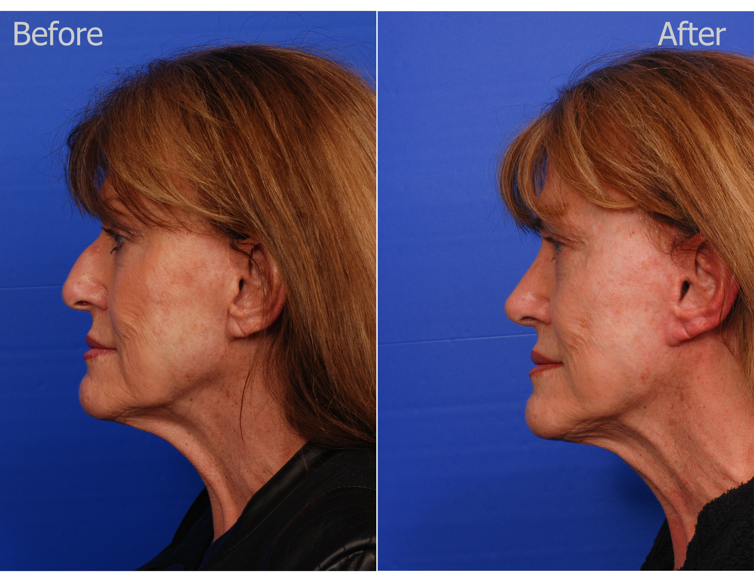 Diary of a Rhinoplasty Patient: New Nose Review — SKY Facial