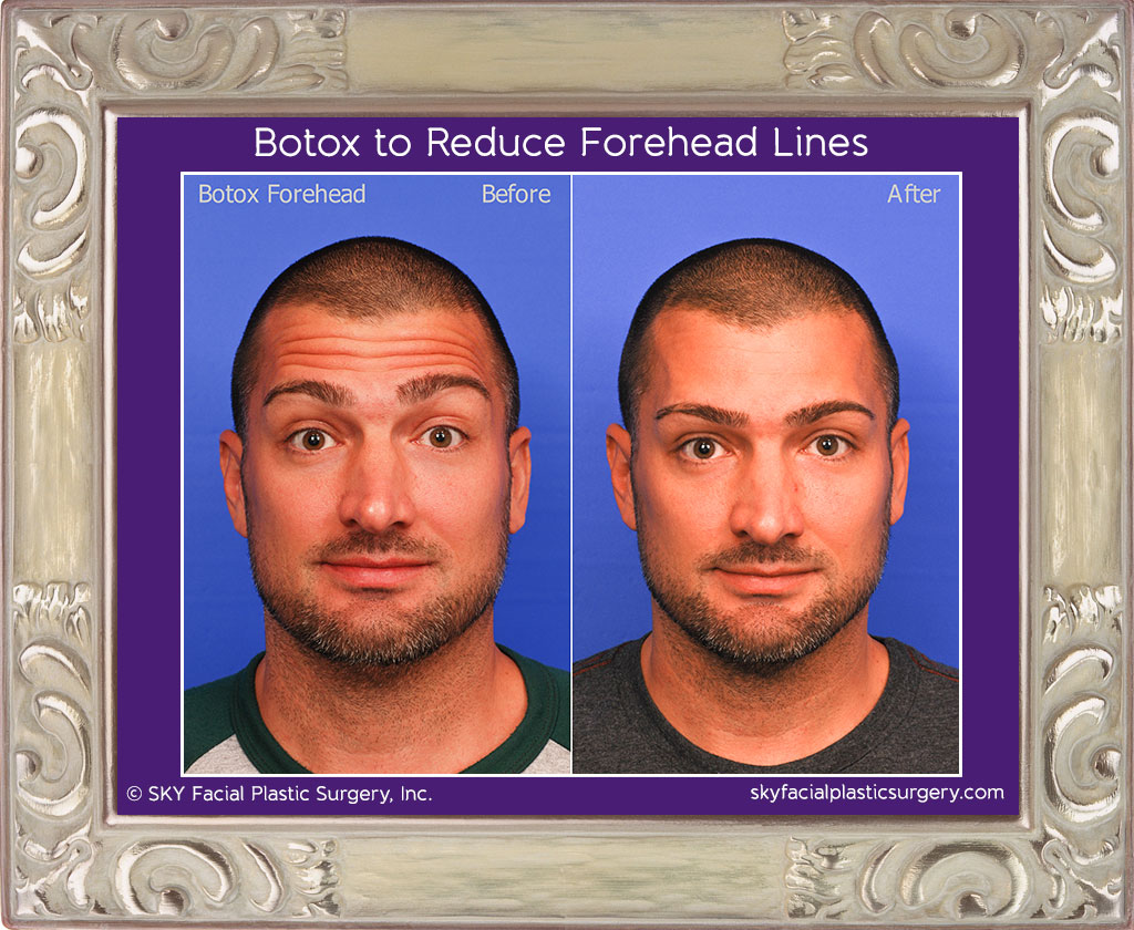 Before & After results: Botox patient.
