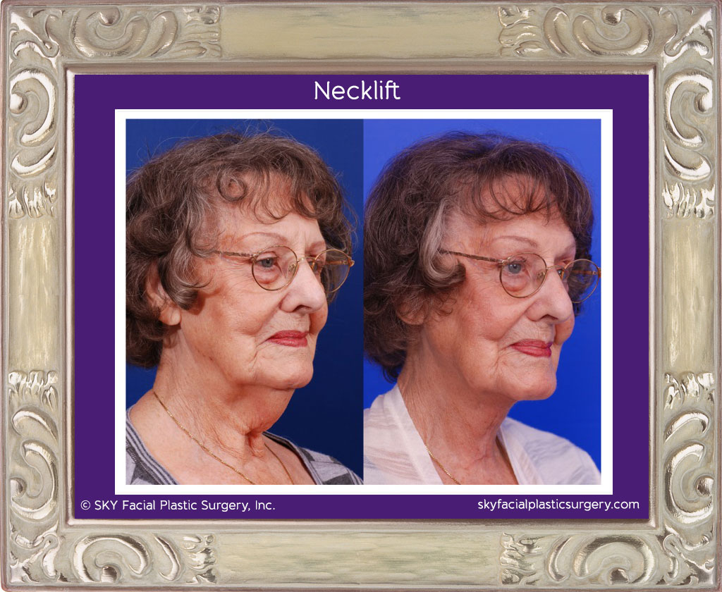 Necklift: Before & After photos.