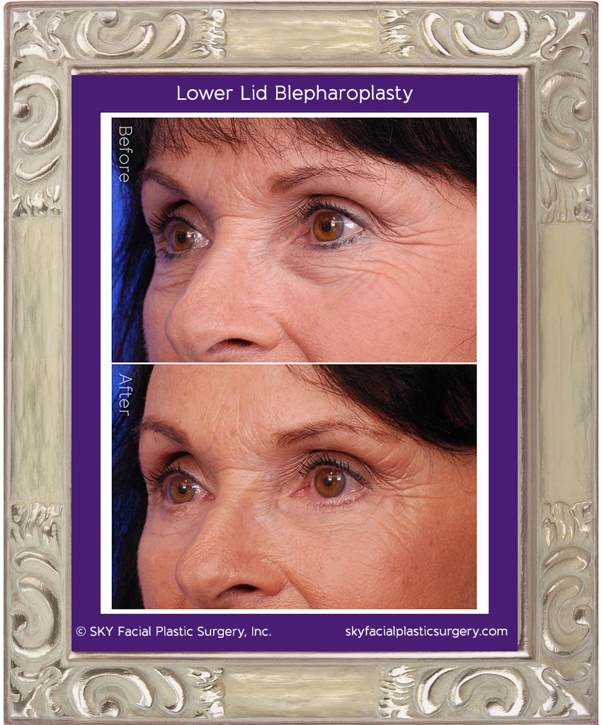 Before & After photos of lower-lid blepharoplasty patient.