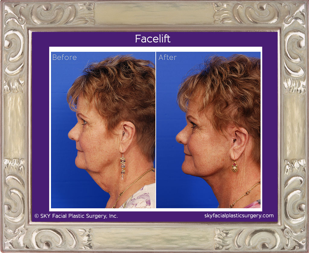 If a patient requires more skin to be removed, the incisions will need to be larger to achieve optimal results.