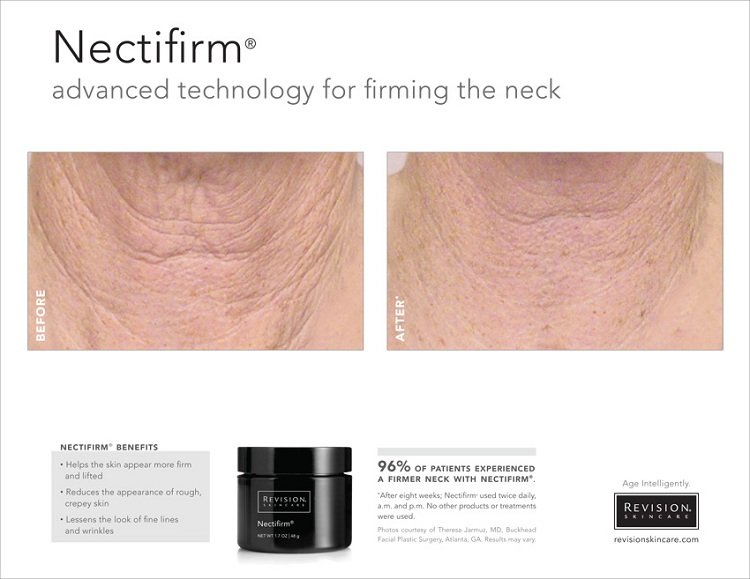 PHOTO: Before and After photos showing Nectifirm firms the neck and reduces the appearance of fine lines and wrinkles.